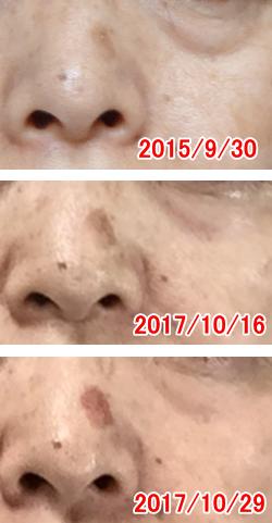 赤いシミ顔画像