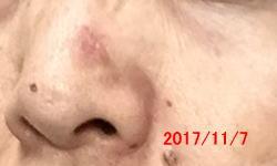 赤い シミ 顔 画像